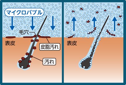 マイクロバブルの作用の解説図
